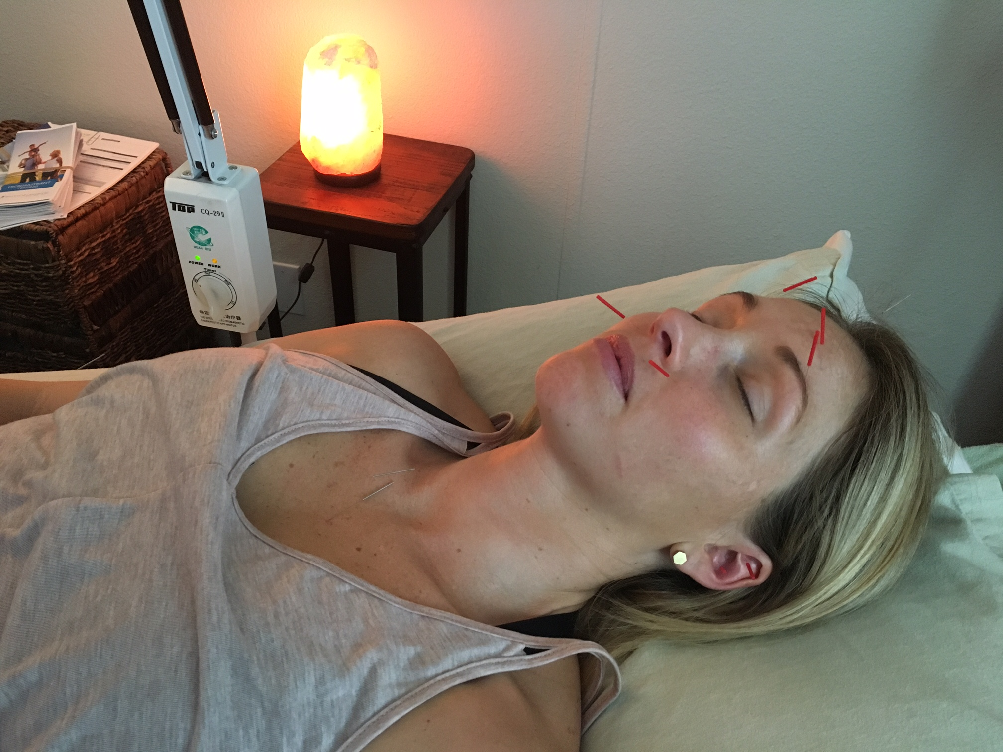 acupuncture san diego services