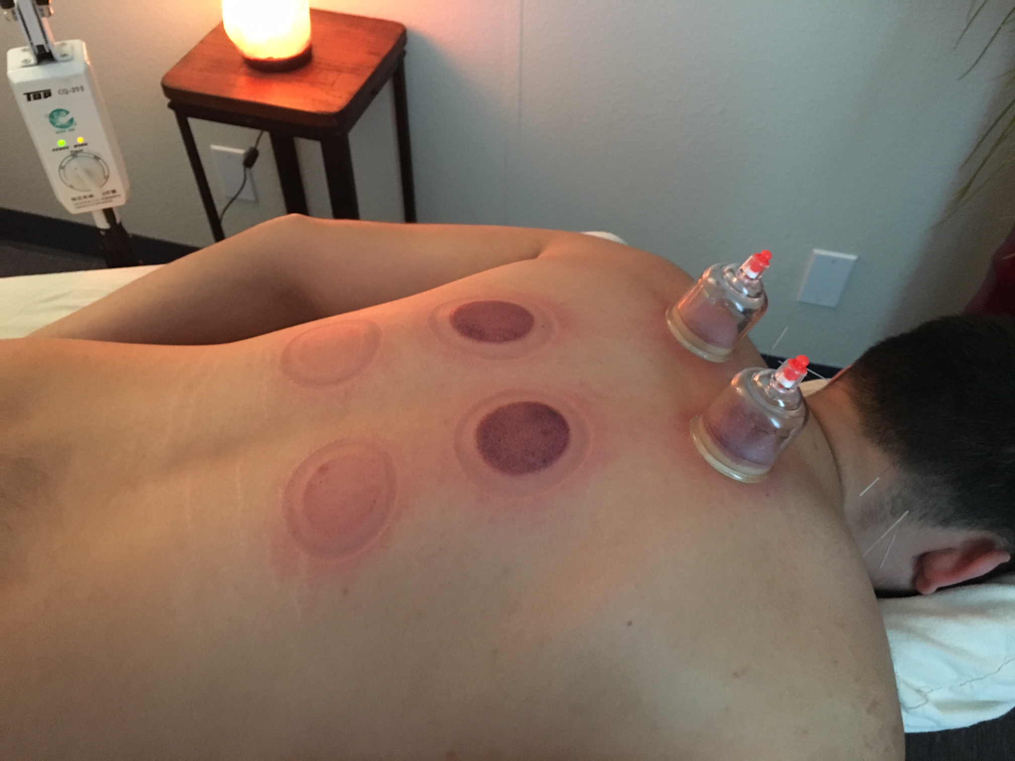 cupping services san diego